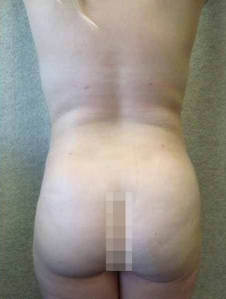 Female Liposuction After Photos (16)