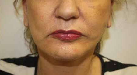 mini face lift procedure surgery