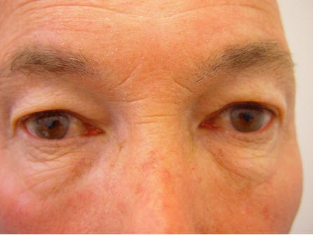 Eye Rejuvenation Procedure Before and After Photos
