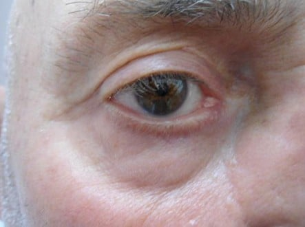 Eye Rejuvenation Surgery Before and After Photos