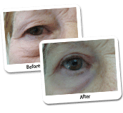 Eyelid Surgery Before & After Photos (10)