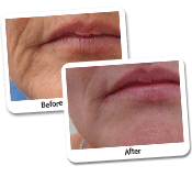 Face Laser Resurfacing Before & After Photos (2)