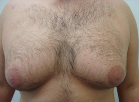 https://www.drlanzer.com.au/wp-content/uploads/2014/02/liposuction-chest-before-after-photo-382-10-e1393176910104.jpg