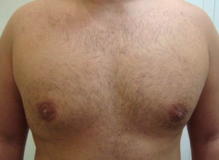 man boobs before and after photos