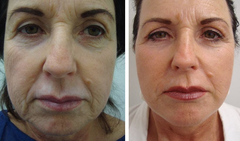 Mini Facelift Procedures To Remove Excess Skin - Dr Lanzer