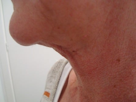 Neck Liposuction After Photos (5)
