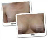 Breast Augmentation Surgery Before and After Photos