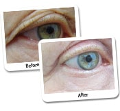 Male Eye Rejuvenation Before And After Photos