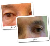 Eye Rejuvenation Procedure Before and After Photos (1)