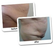 Mega Liposuction Before & After Photos (4)