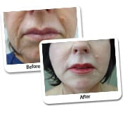 Face Lift Before & After Photos (1)