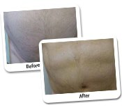 Vaser High Def Liposuction Before and After Photos (9)