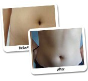Vaser Hi Def Liposculpture Before & After