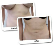 Female Vaser High Def Liposuction Before and After (14)
