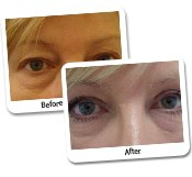 Eyelid Surgery Before & After Photos (13)