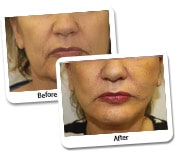 Mini Face Lift Procedure Before And After Photos (5)