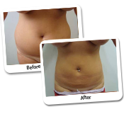 Female Liposuction Before & After Photos (11)