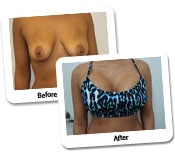 Breast Augmentation Before and After Photos (4)