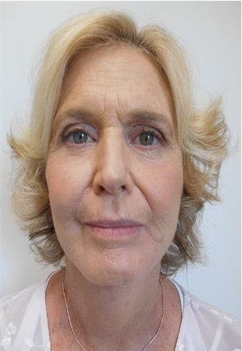 Face Lift After Photos