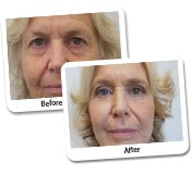 Face Lift Before & After Photos (2)