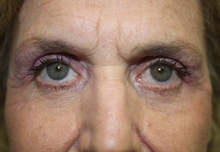 Eyelid Surgery After Photos