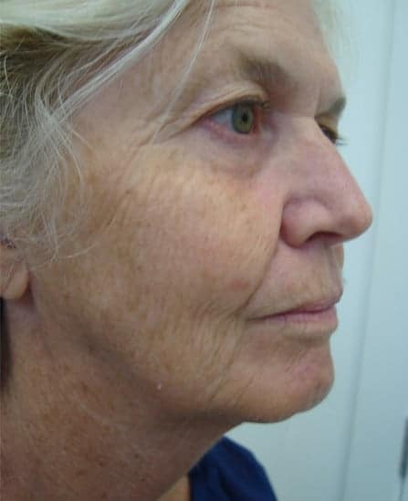 Face Lift Before And After (Before Photo)