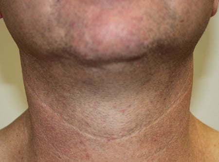 Neck Liposuction After Photo