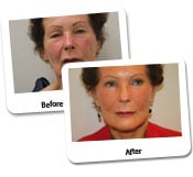 Face Lift  Before & After Photos (9)