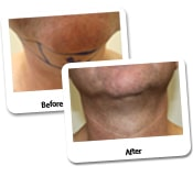 Neck Liposuction Before & After Photos (9)