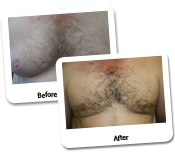 Man Breast Reduction Before And After Photos (11)