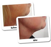 Neck Liposuction Before & After Photos (10)