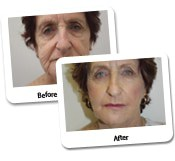Face Lift Before And After Photos (11)