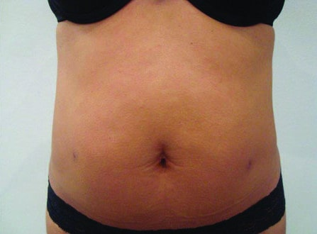 Female Liposuction  After Photo