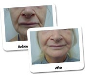 Face Lift Before And After Photos (12)