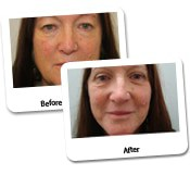 Face Lift Before And After Photos (14)