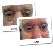 Eye Rejuvenation for Men Before & After Photos (7)