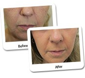 Female Facelift Case Study