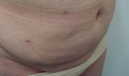 Mega Liposuction After Photo