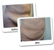 Mega Liposuction Before And After Photos (8)