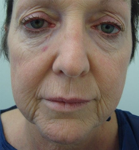 Face Makeover Before Photo