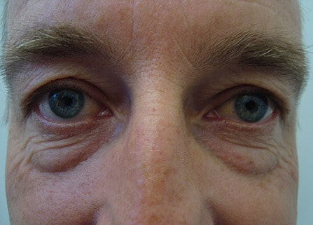 Eye Rejuvenation for Men Before Photo