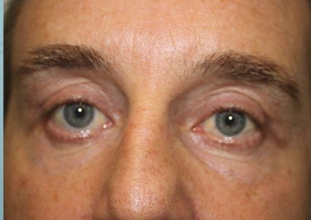 Eye Rejuvenation for Men After Photo