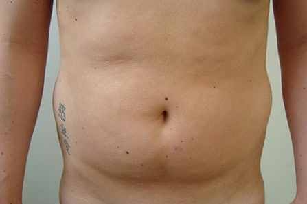 Female Liposuction Before Photo