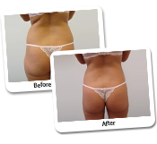 Liposuction For Men By Dr Lanzer - 25+ Years Experience