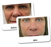 Face Makeover Before & After Photos (9)