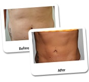 Female Liposuction Before & After Photos (20)