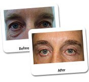Eye Rejuvenation for Men Before And After Photos (8)