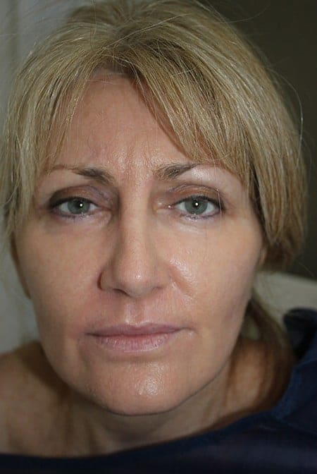 Face Makeover After Photos