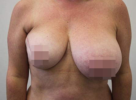 Female Breast Reduction After Photos