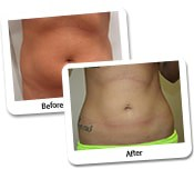 Get More Defined Abs With High-Definition Liposculpture